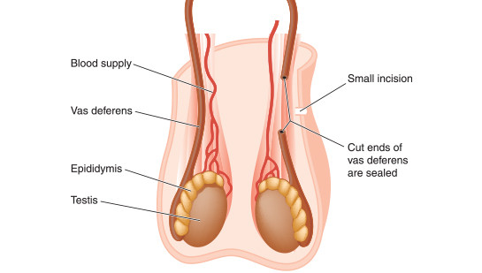 vasectomy procedure